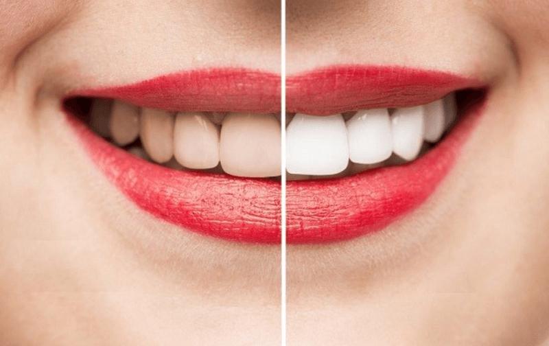 Giúp răng trắng sáng