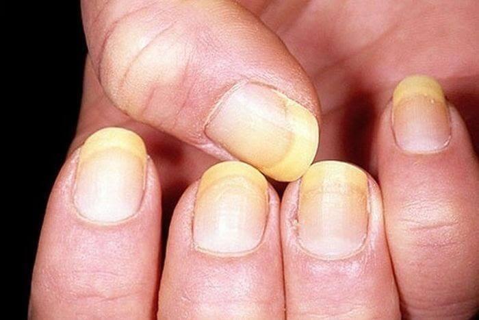 Xóa màu vàng ố trên móng tay